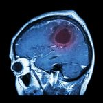 Traumatic Brain Injures